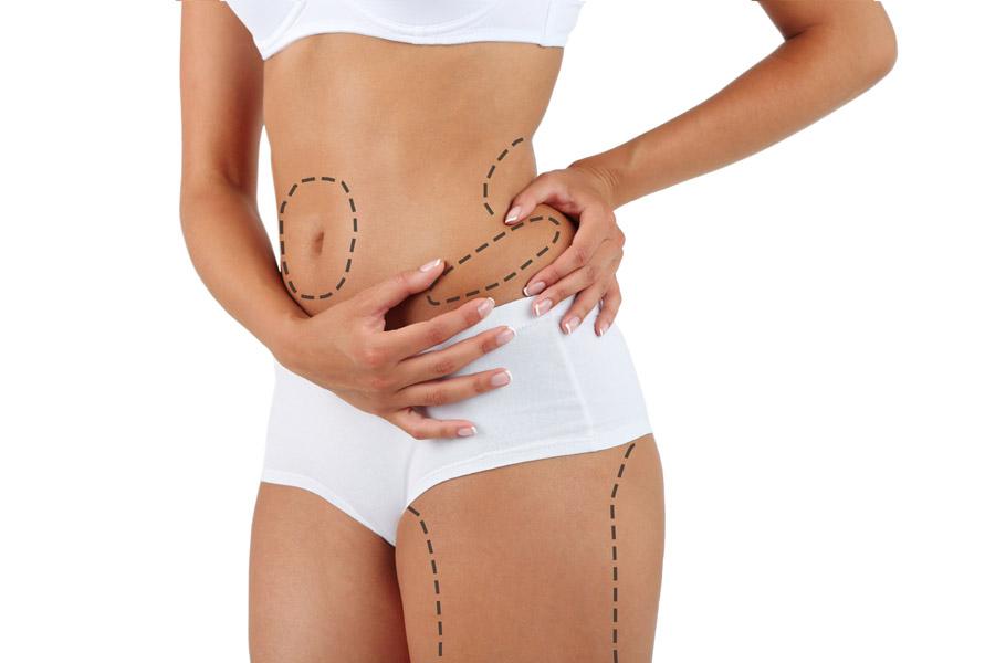 Liposukcja – jak przebiega zabieg?