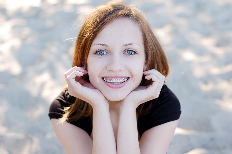 Najlepsze aparaty ortodontyczne dla dorosłych